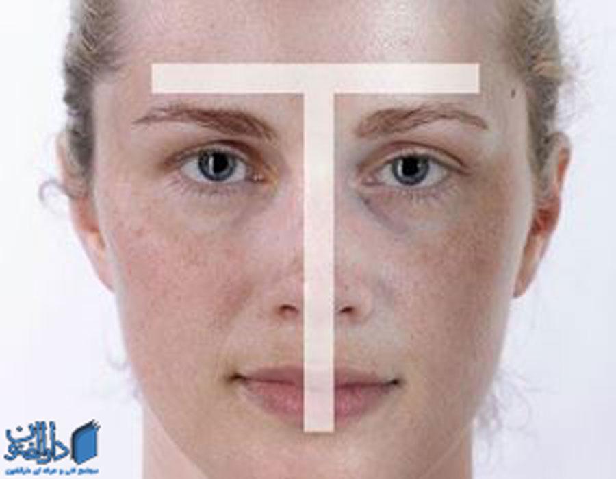 انواع پوست: جنس پوست ترکیبی