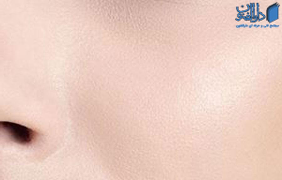 انواع پوست: پوست معمولی
