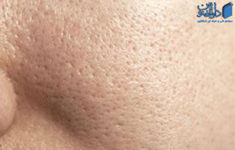انواع پوست: جنس پوست چرب یا روغنی
