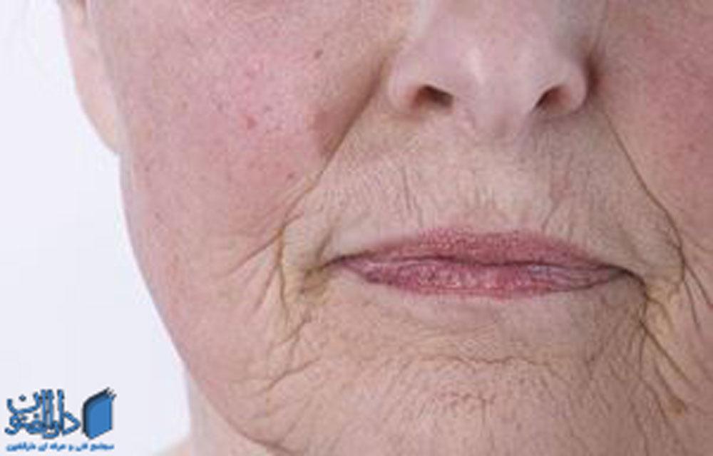 افزایش سن می تواند منجر به تغییر جنس پوست و خشک شدن آن شود.