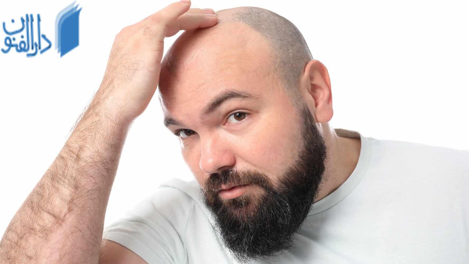 عوامل ریزش مو : چه علت های باعث ریختن مو می شود ؟