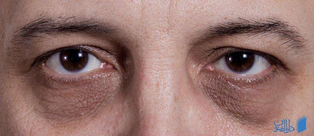 سیاهی دور چشم به چه علت به وجود آمده و چه طور درمان می شود؟