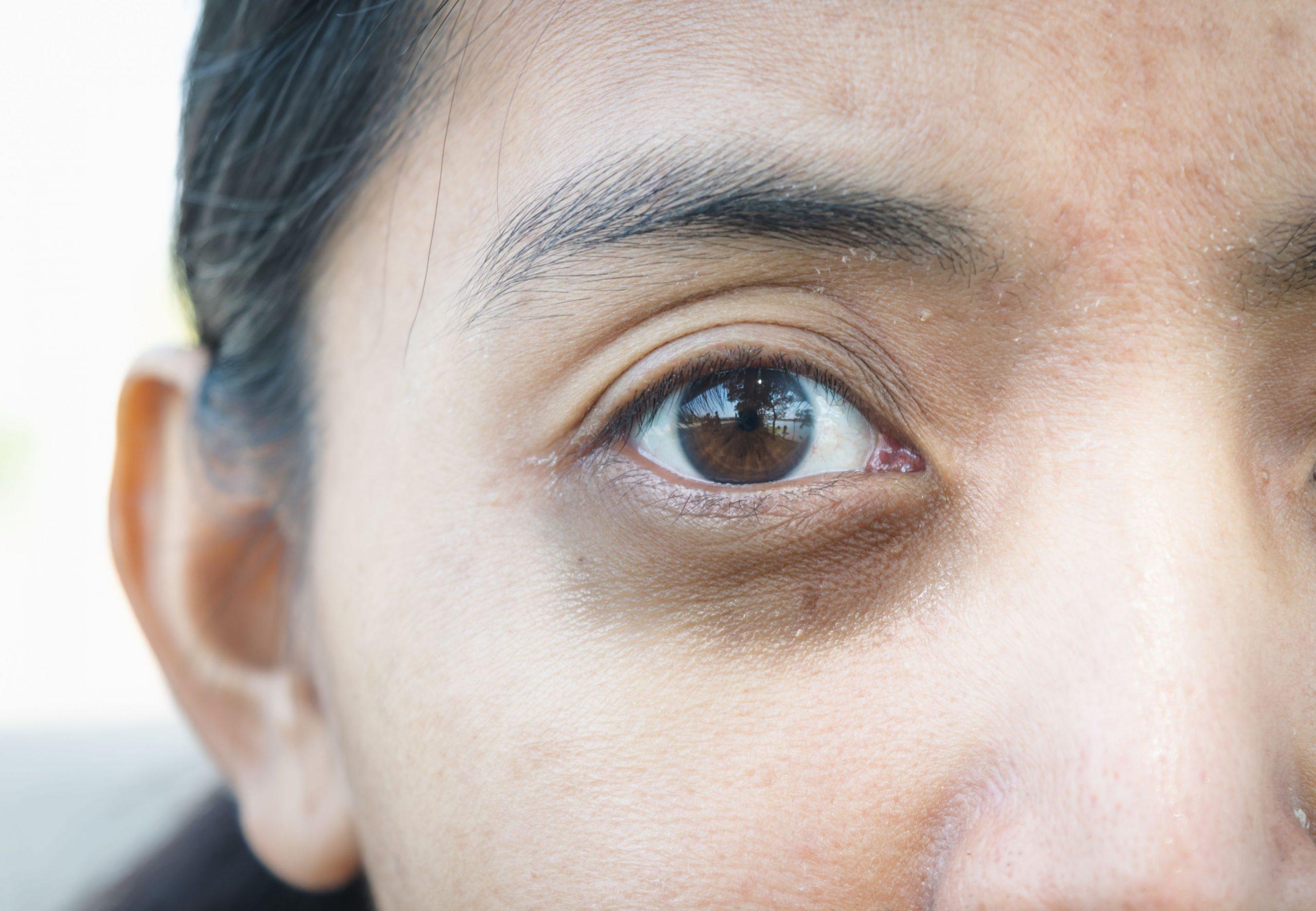 سیاهی دور چشم