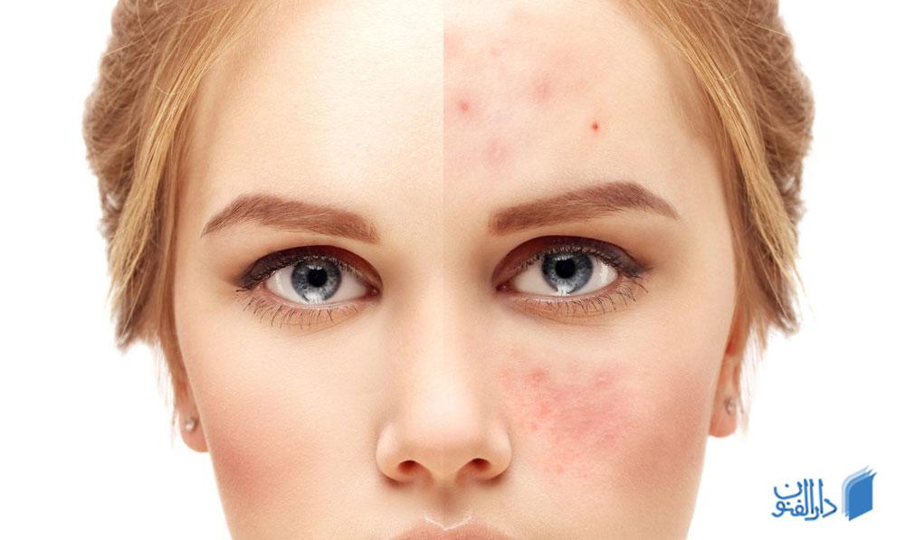 درمان جوش صورت به چه طریقی انجام می شود؟