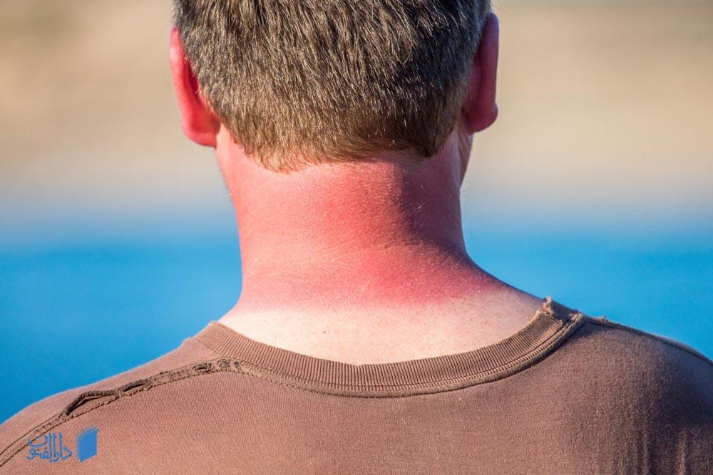 آفتاب سوختگی چیست، چگونه درمان می شود و چگونه می توان از آن جلوگیری کرد؟