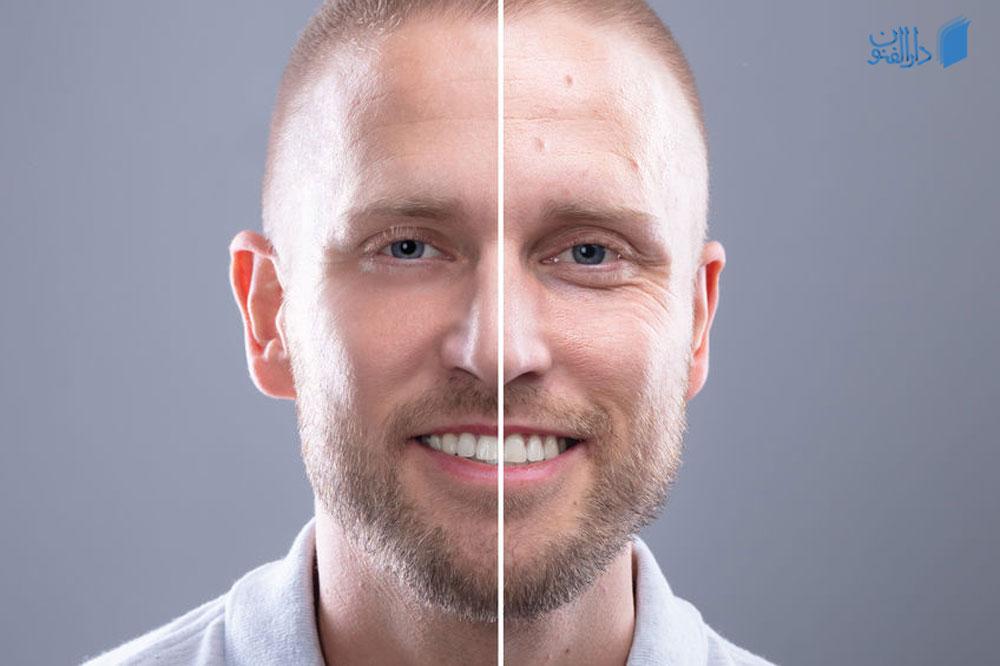 قبل و بعد از میکرونیدلینگ