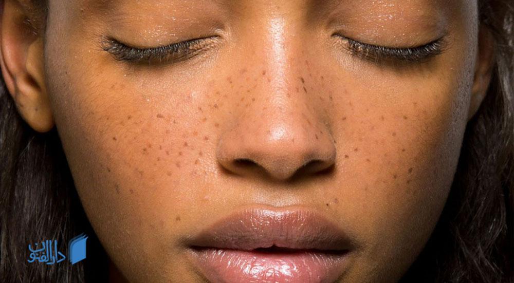 درمان کک و مک : کک مک چیست و چگونه می توان از آن خلاص شد؟