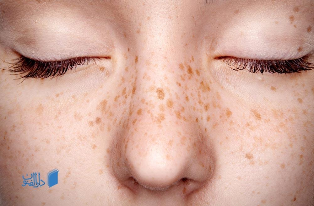 افراد سفید پوست، احتمال بیشتری در ابتلا به کک و مک دارند.